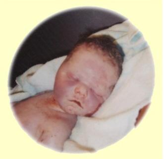 Baby Marmorierte Haut